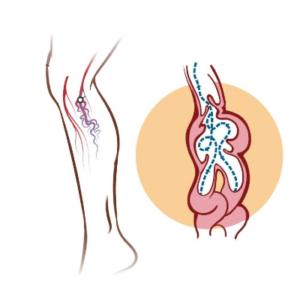 علاج دوالي الساقين بدون جراحة